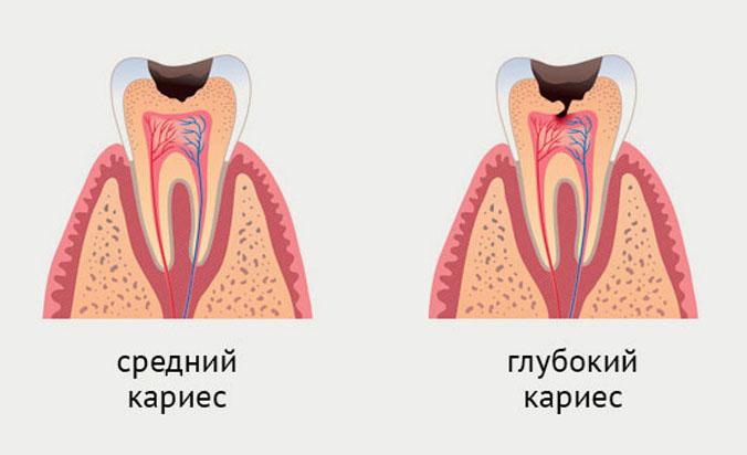 стадии кариеа