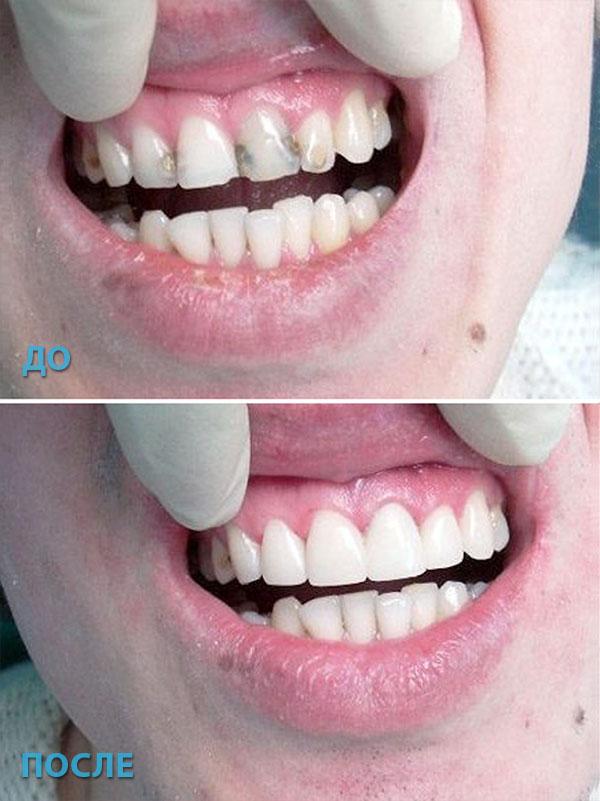 до и после установки виниров фото