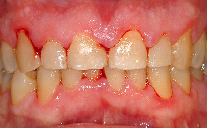 катаральный гигиенит