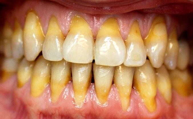 оголение зуба
