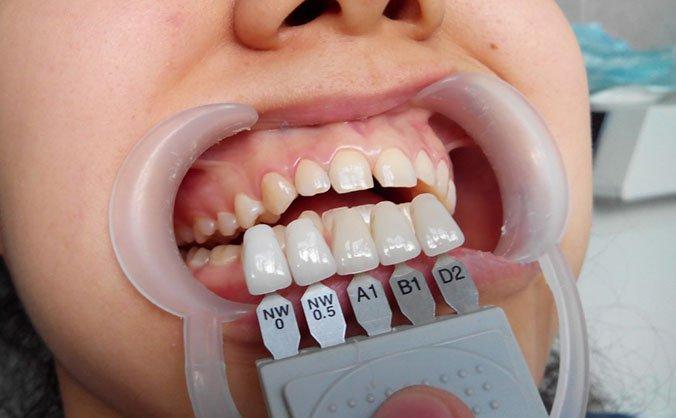 виниры при оголении зуба