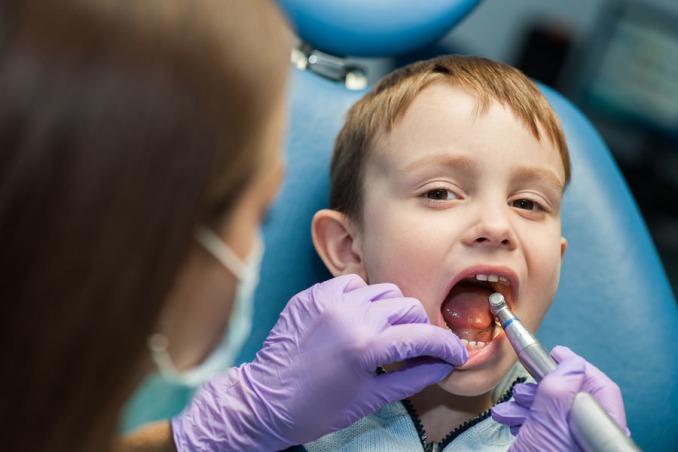 хирургий метод лечения пульпита молочного зуба