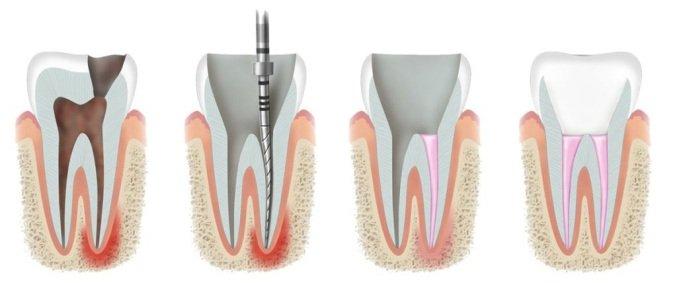 витальная ампутация молочного зуба