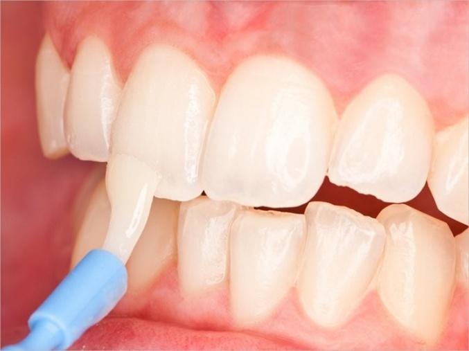 реминерализация зуба с кариесом